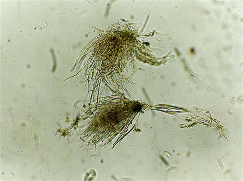 水生生物 アユの胃内容物中の付着藻類(藍藻類)